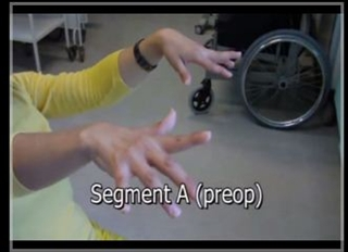 Movement disorder patient video.